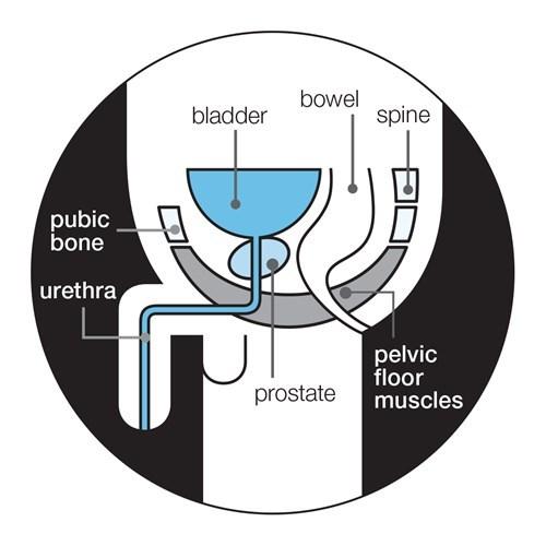 Prostatitis orvosi tapasz. Kineziológiai tapaszok fajtái