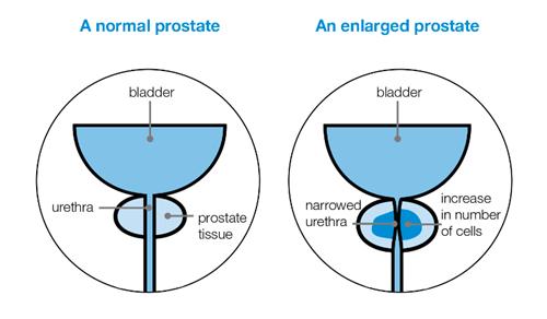 A prostatitisz a fiúkban az oka - frigo-max.hu
